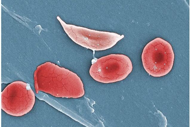 Sickle cells illustration