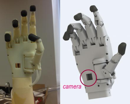 iris hand prosthetic