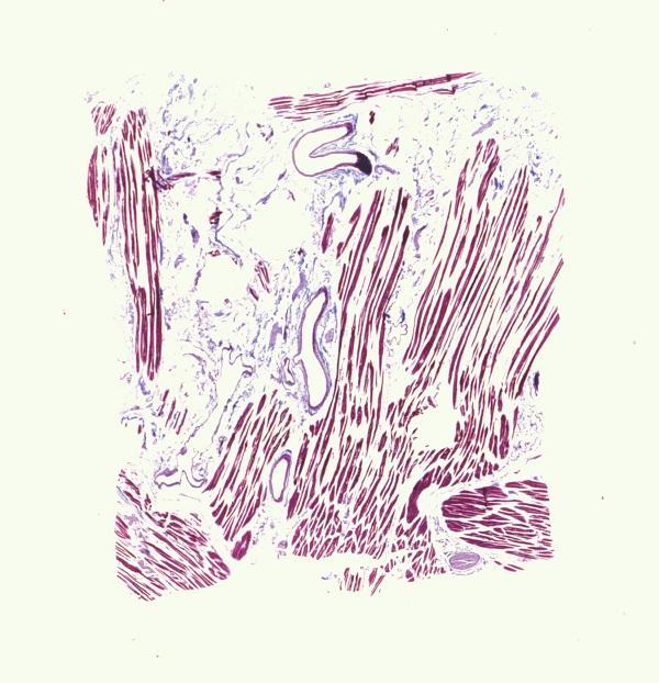Histology of the Human Tongue