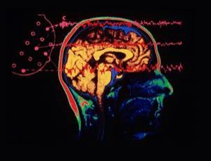 chaos brain