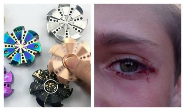 fidget spinner eye loss accident damage
