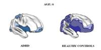 ADHD Brain Maturation