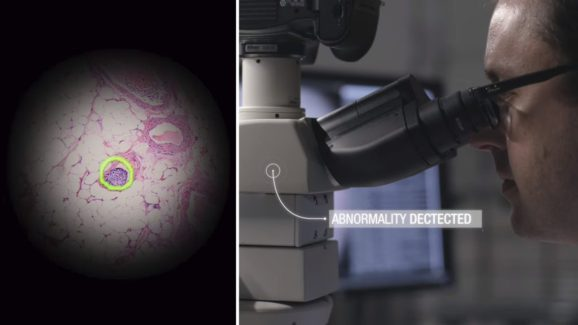 For Real-time Cancer Detection, Google Innovates AR-powered