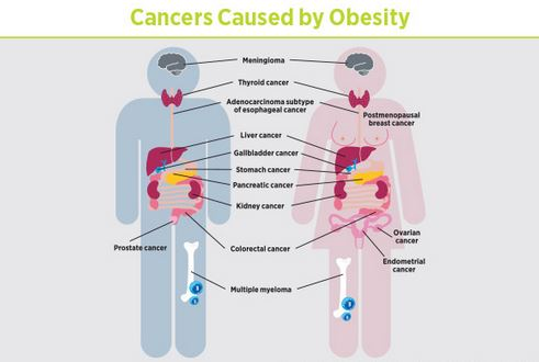According To Global Health Review Obesity Is Responsible For 4 Percent Of Cancers In The World