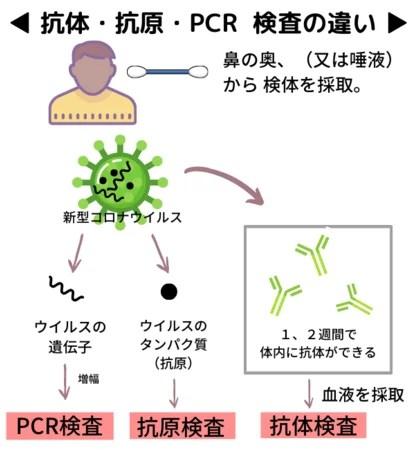 PigNoN、新型コロナウイルス:抗体検査キット