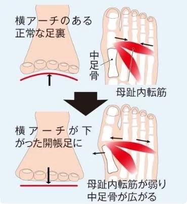 ケアソク、自宅で簡単に外反母趾を緩和/予防ができるワンポイントアドバイス