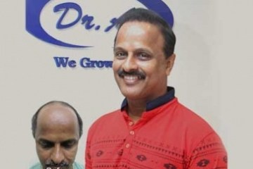 Best Hair Transplant Clinic in Pune