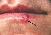 Symptoms of herpes include blisters or sores around the mouth, lips or gentials.