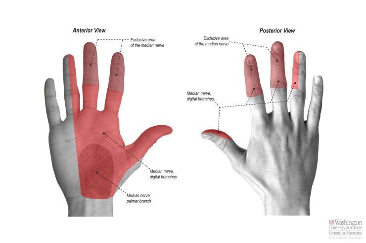 median-nerve-palsy
