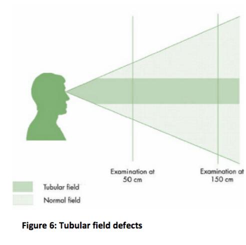 tubular field image