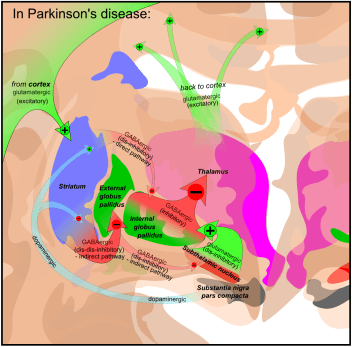 Basal_ganglia_in_Parkinson's_disease