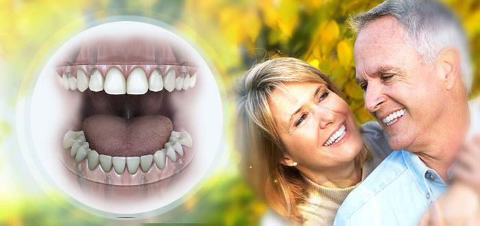 benefits-of-teeth-in-one-day-dental-implants