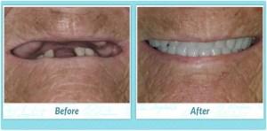 Dental Implants Smile Gallery Image of Y.S.
