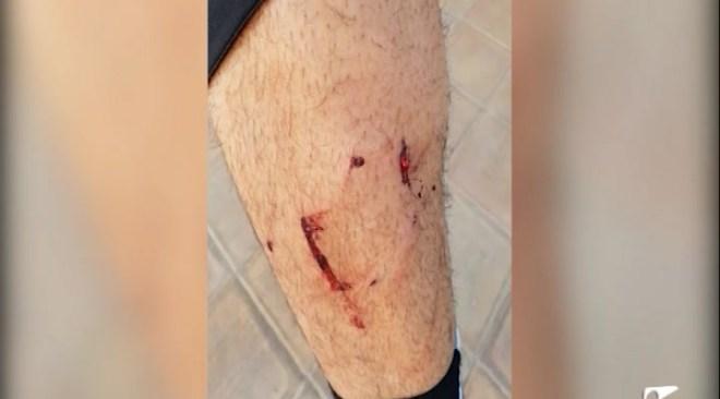 07/01 Un Bull Terrier ataca un ciclista