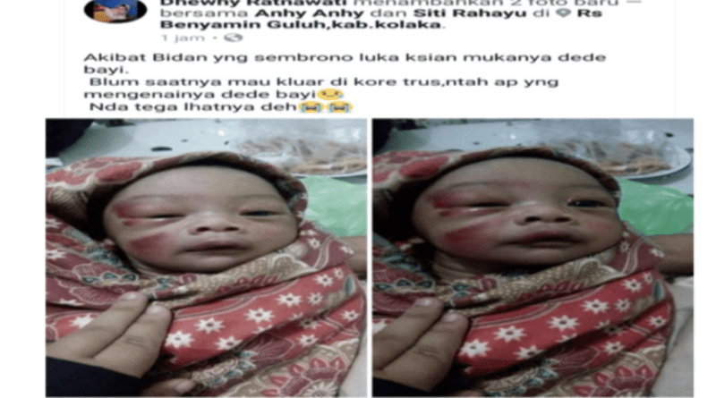 Ibu Alami Penyulitan, Bayi Lahir Penuh Memar di Wajah