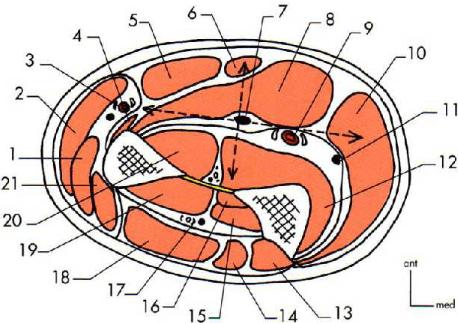 Coupe horizontale passant par le tiers superieur de l avant bras 1