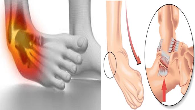 Ligament talo fibulaire anterieur
