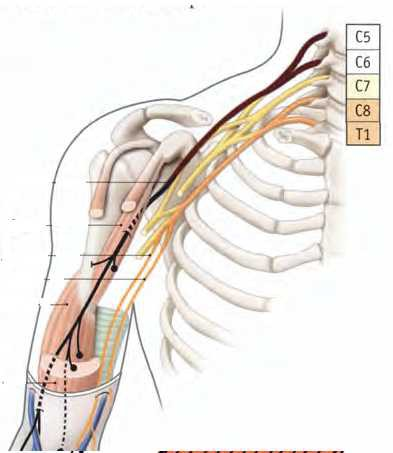 Nerf musculo cutane 1