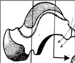 Surface malleolaire mediale du talus