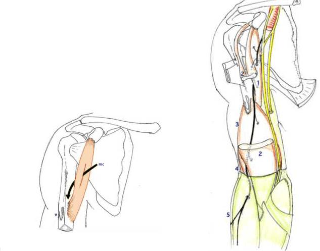 le muscle coraco brachial puis s engage dans la loge anterieure du bras