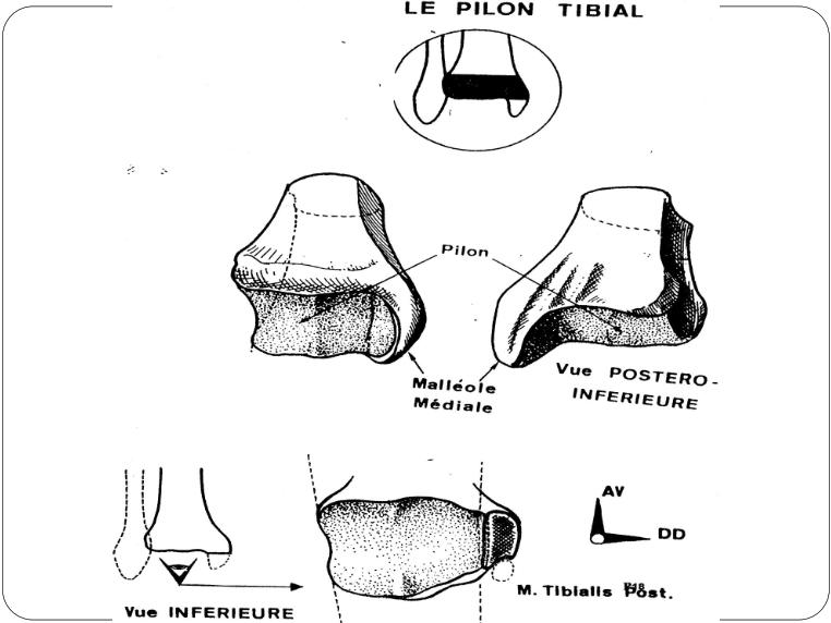 le pilon tibial Articulation talo-crurale