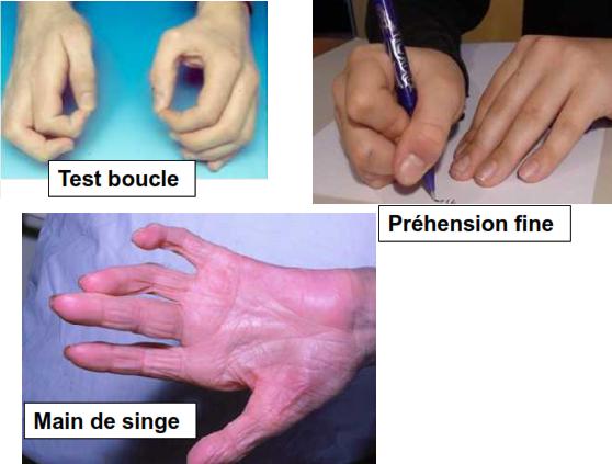main de singe