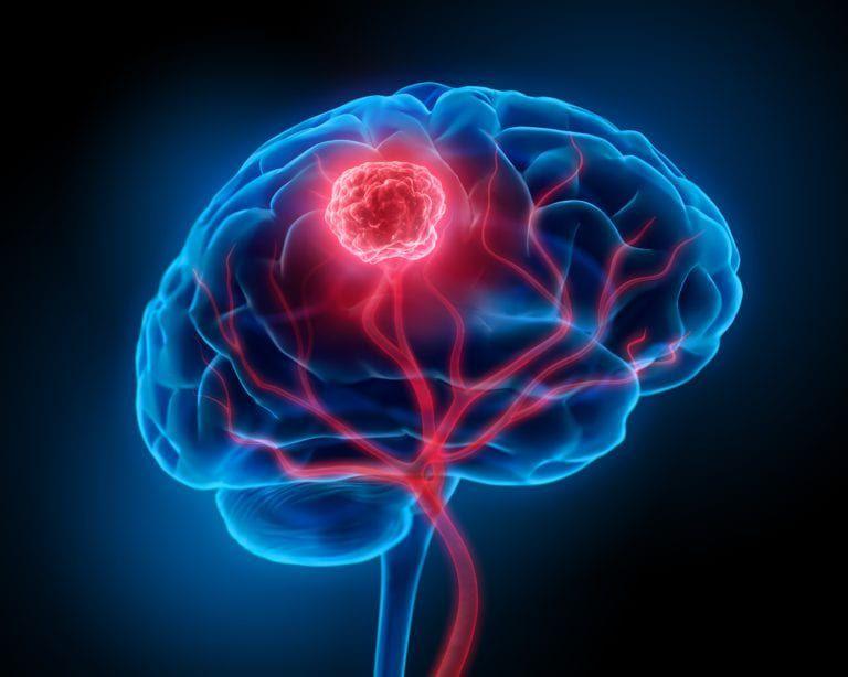 NeurosurgicalFeb2020 min