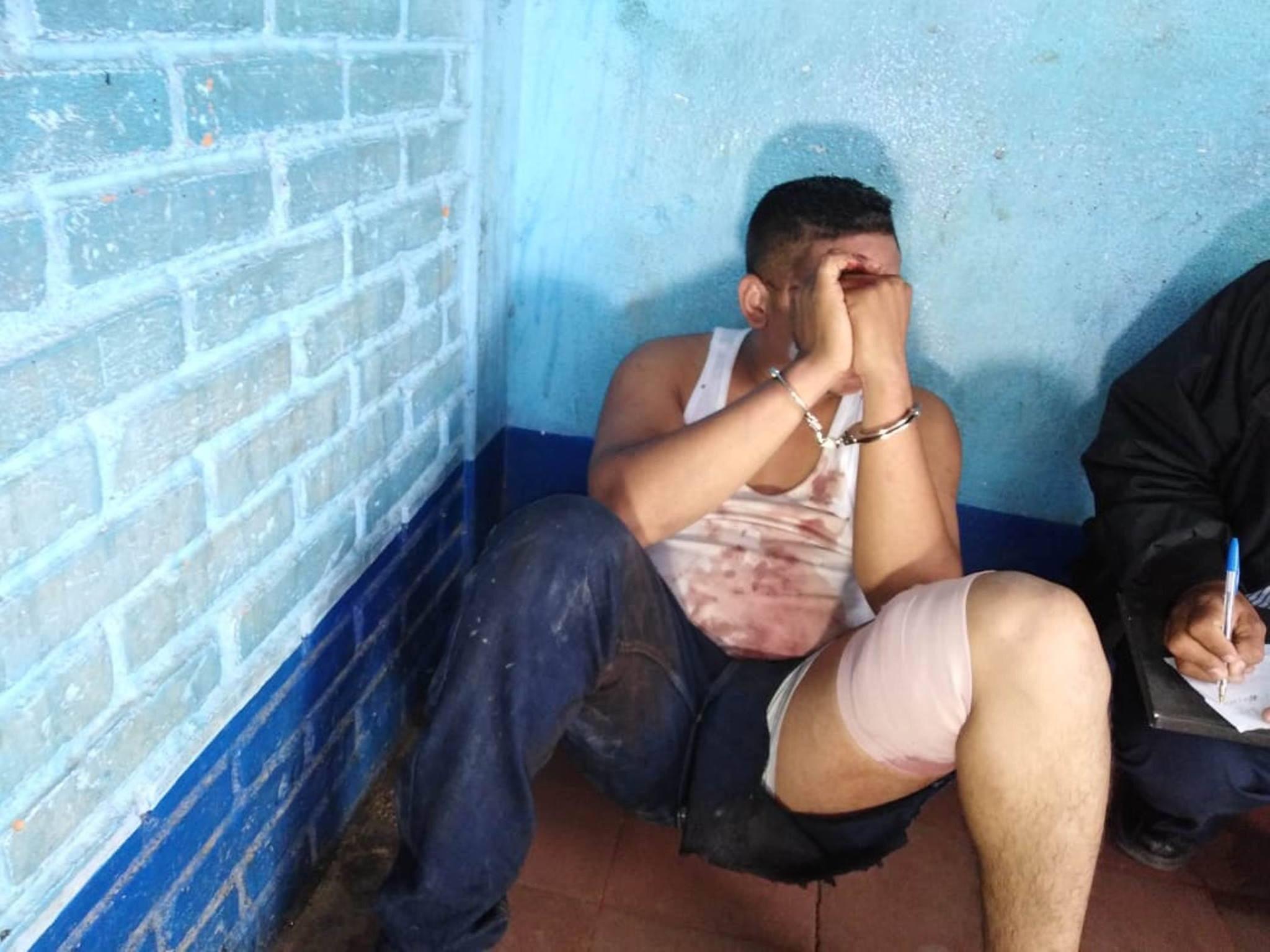 Sujeto resulta herido de bala al enfrentarse contra patrulla policial en Estelí.