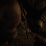 jorah mormont (played by iain glen) has his greyscale skin removed by samwell tarly