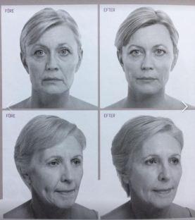 Klart de väljer bilder omsorgsfullt och lägger på lite make och fixar håret mera på de senare bilderna.
