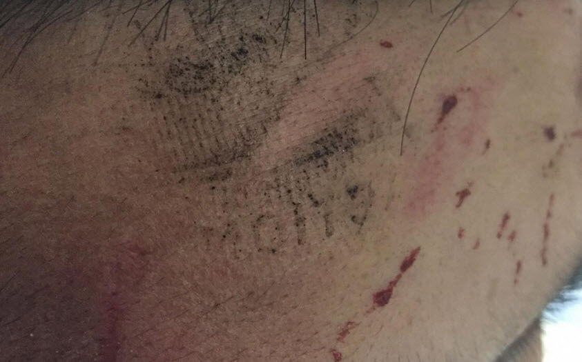 Asian Muslim Man So Violently Assaulted that Perpetrator Left an Imprint on His Head