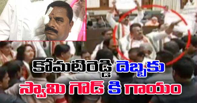 komatireddy throws Headset in TS Assembly Swamy Goud eye Injured
