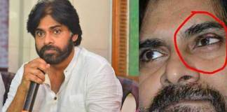 Left eye surgery completed for Pawan Kalyan On thursday