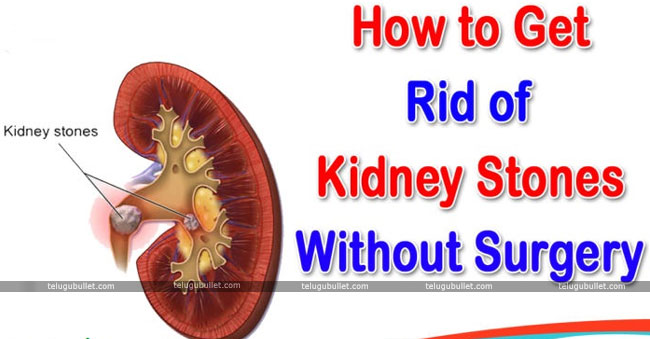 How To Reduce Kidney Stones Without Surgery
