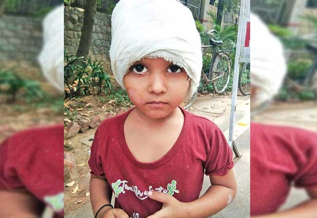 2 year old Delhi Girl Suffers Hearing loss due to rash driving
