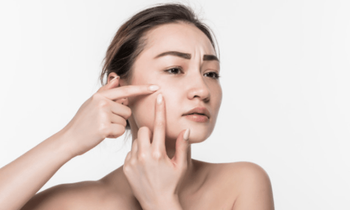 How stress impacts skin