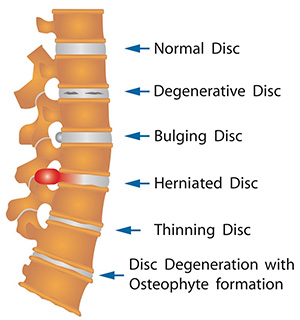Spinal Decompression Therapy Treats Degenerative, Bulging and Herniated Discs