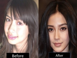 Before and after in Dalian-based clinic?