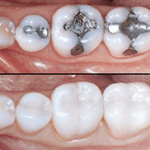 mercury fillings before and after