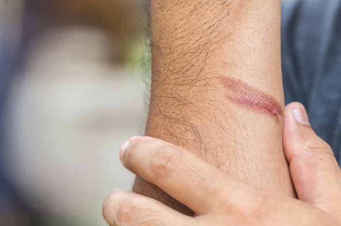 bekas luka bakar