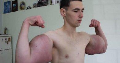 Kisah Unik Pria Badan Kurus Tapi Punya Otot Lengan Sebesar Hulk