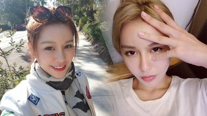 Cantik Setelah 30 Kali Operasi Plastik, Wanita Ini Menyesal Ternyata Ini Wajah Aslinya