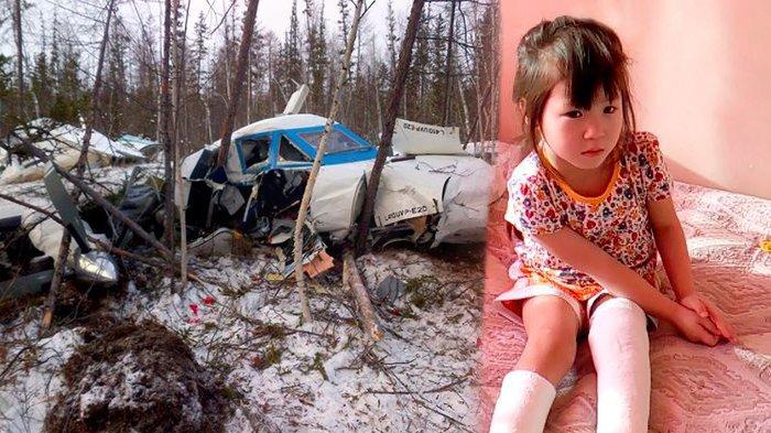 Gadis Ini Terlibat Kecelakaan Pesawat dan Merupakan Satu-satunya Penumpang yang Selamat