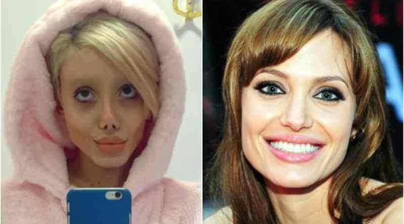 Ingin Mirip Angelina Jolie, Sahar Tabar Operasi Wajah 50 Kali
