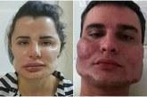"""Brazil/ 40 pacientë padisin një kirurg plastik: i la """"pa martuar"""""""