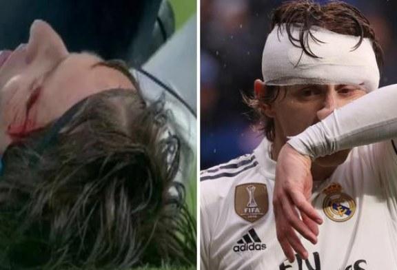 Real – Sevilja: përgjaket Luka Modriç, vijon lojën i fashuar (video)