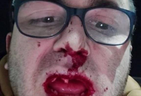 Hundë dhe dhëmbë të thyera në gazetarinë kosovare