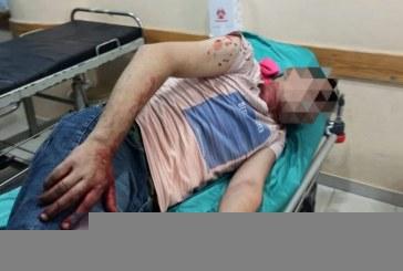 Ja behin të vrarët në fund-Ramazan: si po rëndohet situata në Jerusalem