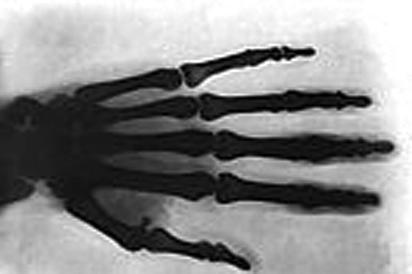 Nicola Tesla Hand through x-ray