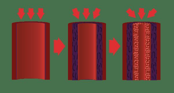 pulmonale hypertensie
